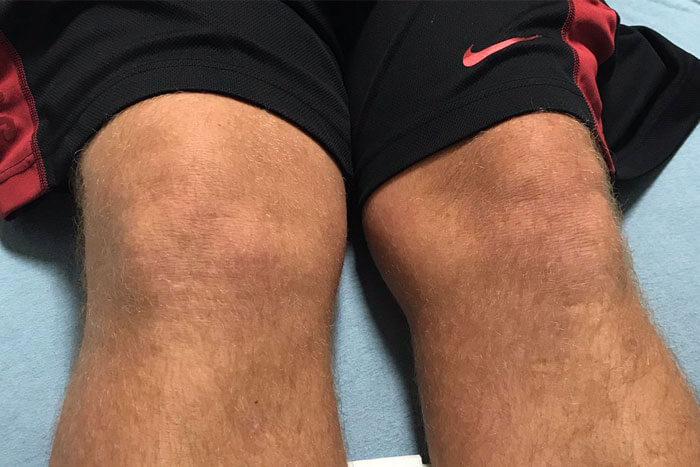 John Daly Knee Injury